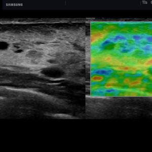 Молочная железа, функция ElastoScan