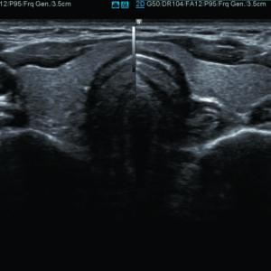Щитовидная железа в режиме В/В