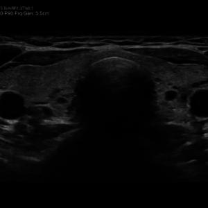 Щитовидная железа в В-режиме, трапециевидное сканирование