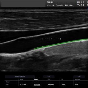 Общая сонная артерия в В-режиме, автоматический расчет ТИМ – функция AutoIMT+