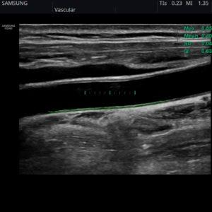 Общая сонная артерия (ОСА) в режиме Auto IMT+ ( CCA)