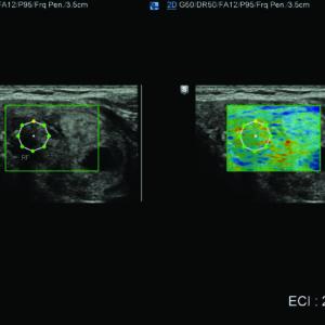 Образование в щитовидной железе с применением E-Thyroid™