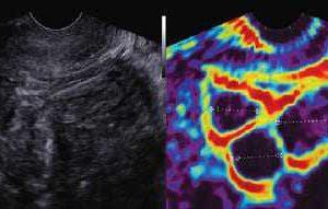 Эластограмма матки в режиме ElastoScan™