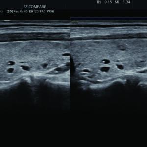 Щитовидная железа а режиме EzCompare™