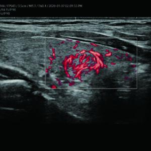 Узел щитовидной железы в режиме MV-Flow™ (LA2-14A)