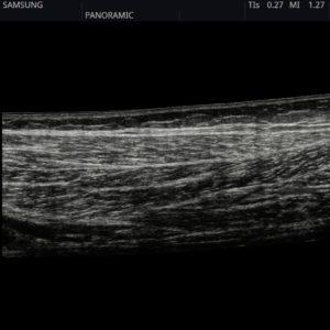 Мышца нижней конечности в режиме панорамной визуализации (Low extremity muscle)
