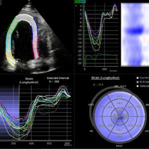 Сердце в режиме Strain+ (Adult echo)