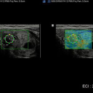 Эластограмма щитовидной железы и количественная оценка эластичности