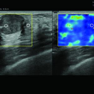 Новообразование молочной железы в режиме S-Shearwave Imaging™ (эластография сдвиговой волной) (LA2-14A)