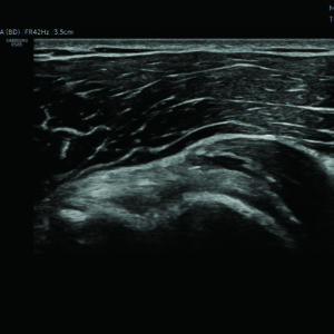Плечевой сустав в режиме S-Harmonic™ (LA2-14A)