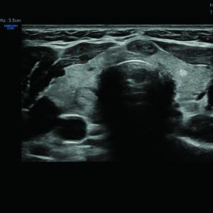 Щитовидная железа в режиме S-Harmonic™ (LA2-14A)