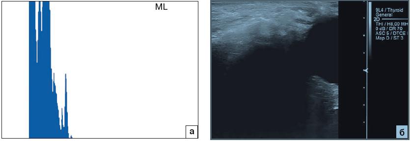 Рис. 1. Катаральный верхнечелюстной синусит. Пояснения в тексте. а – эхограмма левой верхнечелюстной пазухи в А-режиме; б – эхограмма левой верхнечелюстной пазухи в В-режиме.