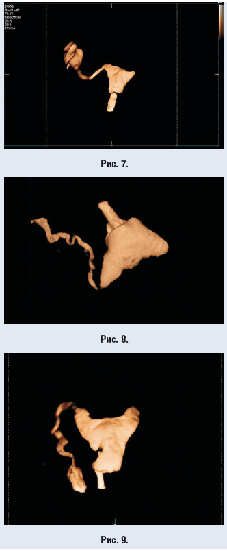 Рис. 7–9. 4D HyCoSy-изображения; видна обструкция левой маточной трубы и сохранная проходимость правой. Видны только проходимые правые маточные трубы. Левые маточные трубы не видны.