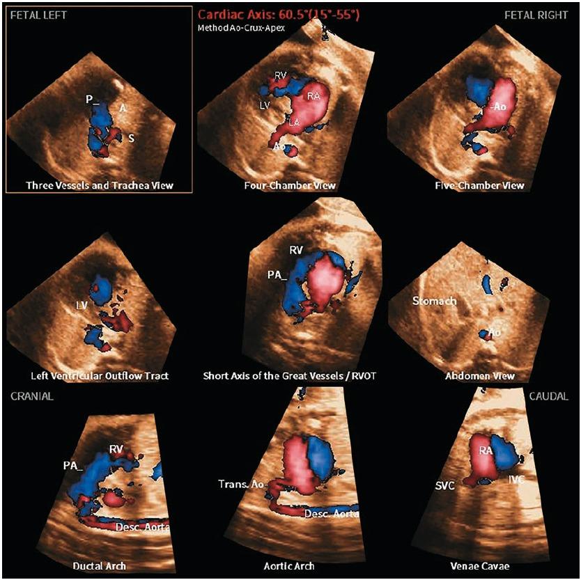 Рис. 8. Реконструкция всех девяти диагностических плоскостей с помощью технологии 5D Heart Color ™ у плода с гипоплазией левых отделов сердца, вызванной атрезией митрального клапана и аорты. Четко видны анатомические изменения в 8 из 9 плоскостей: обратное направление заполнения поперечной части дуги аорты (3VT, проекция дуги аорты), отсутствие цветового сигнала при левостороннем расположении сердца и выносящего тракта (четырех- камерная, пятикамерная, LVOT-проекции), последовательное расширение правого предсердия (проекции: четырех-камерная, пятикамерная, выносящего тракта правого желудочка (left ventricular outflow tract – RVOT), дуги аорты и бикавальная).