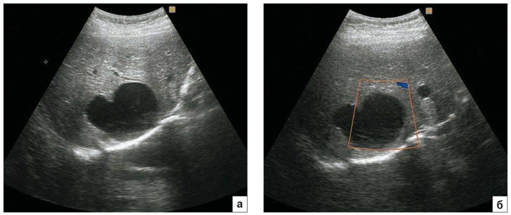 Ультразвуковая картина эхинококковой кисты печени. Стадия CL. a – в правой доле печени визуализируется однокамерное кистозное образование неправильной формы с однородным анэхогенным содержимым; б – в режиме ЦДК образование аваскулярное.