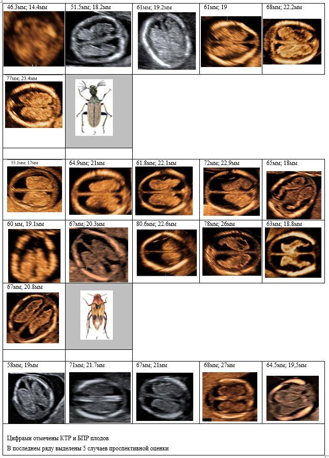 Рис. 4. Отображена эхографическая картина аксиального среза сосудистых сплетений на уровне крыши III желудочка у всех плодов с ОДП, диагностированными нами в 11–14 нед беременности. Приведена аналогия с хитиновыми оболочками «тараканов». В последнем ряду показаны случаи проспективной оценки СС при ОДП. В каждом случае приведены соответственно копчико-теменной и бипариетальный размеры плода.